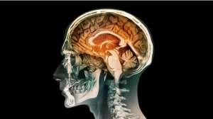Hafızayı geliştiren yapay beyin parçası geliştirildi