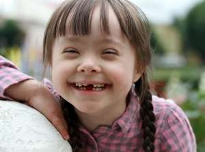 15 Down Sendromlu Birey Bir Anne Adayına Sesleniyor. Peki Neden?