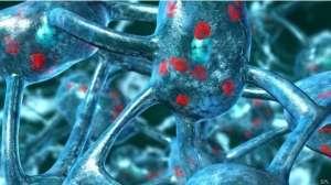 Parkinson 'beyin hücrelerini aşırı ısıtıp öldürüyor'