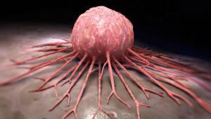 5 soruda çağımızın hastalığı kanser