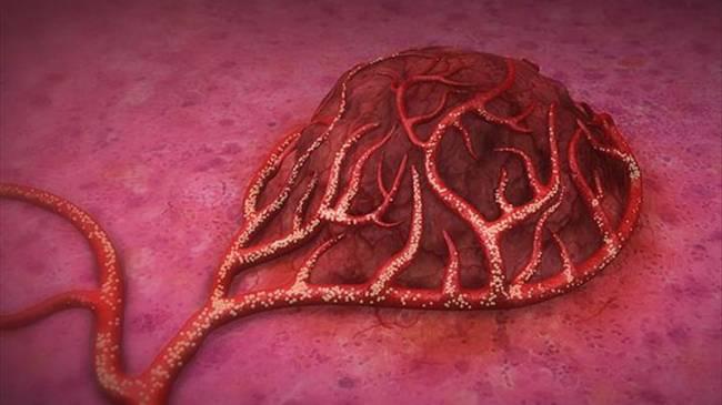 Kanserin insanlık tarihi kadar eski olduğu ortaya çıktı