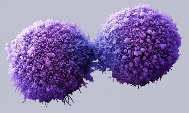Kanser Tedavisinde Yeni Modalite: Elektrik Alan Tedavisi