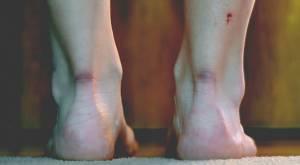 Yaraların iz bırakmadan iyileşebilmesi mümkün mü?