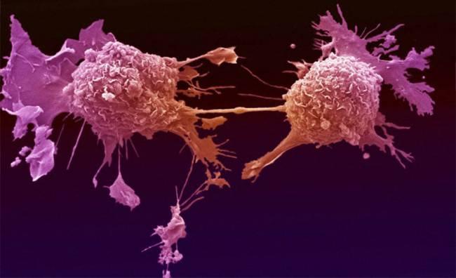 Kanserle Savaşta Yeni Umut: Salmonella Bakterisi